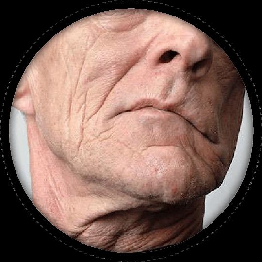 f-face